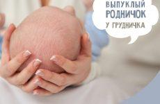 Опуклий джерельце у немовляти: причини та фото