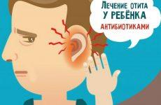 Антибіотики при отиті у дітей з 2 років: протипоказання