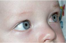 Лікування коньюктівіта у новонароджених