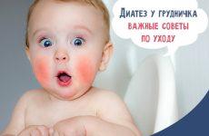 Діатез у немовлят: всі симптоми, лікування та профілактика