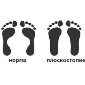 Плоскостопість у дітей: лікування