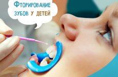 Фторування зубів у дітей: фото до і після, відгуки