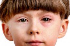Набряк очей у дитини