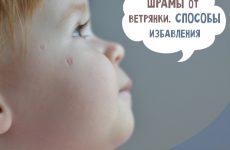 Шрами від вітрянки у дітей: як прибрати і чим мазати
