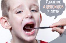 Видалення аденоїдів у дітей: як проходить операція