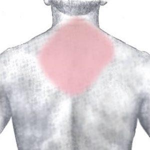Головний біль, кілька версій, які часто спостерігаються