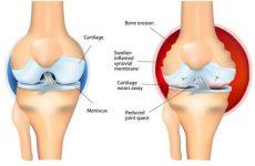 Лікування артриту, захворювання суглобів — метод позбавлення від проблеми