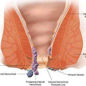Лікуємо зовнішній геморой, ще можна вилікувати без операцій