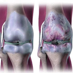 Причини появи артрозу ніг, як у чоловіків, так і у жінок