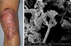"""Причини зараження грибковими захворюваннями"""", що вражають нігті, шкіру"""