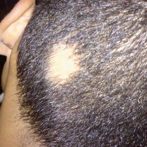 Свербіж шкіри голови — причини випадіння волосся у більшості людей